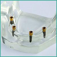Prothèse sur implant